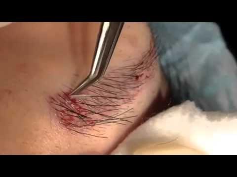 implante de sobrancelhas
